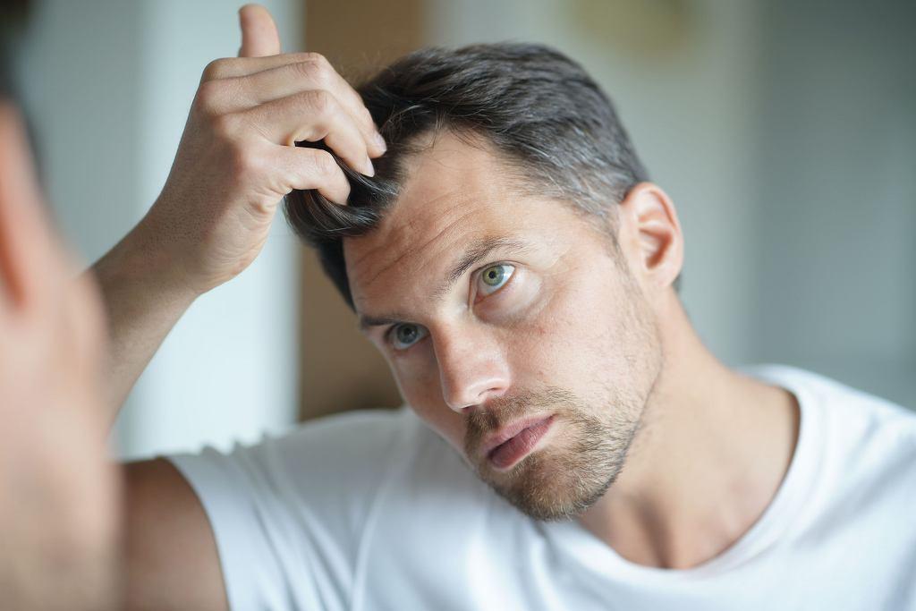 Takie przerzedzenia fryzury może być skutkiem uwarunkowanych genetycznie zmian hormonalnych, ale nie musi,