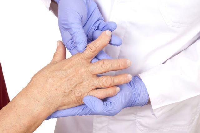 Deformacja kończyny to jeden z najbardziej charakterystycznych objawów choroby