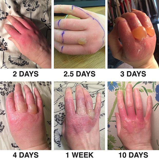 Jak objawia się fitofotodermatoza wywołana przez sok z limonki po 2 dniach, 2,5, 3, 4, po tygodniu i 10 dniach