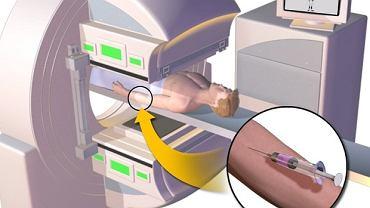 Przebieg scyntygrafii kości: wstrzyknięcie izotopu i rejestracja obrazu na komputerze