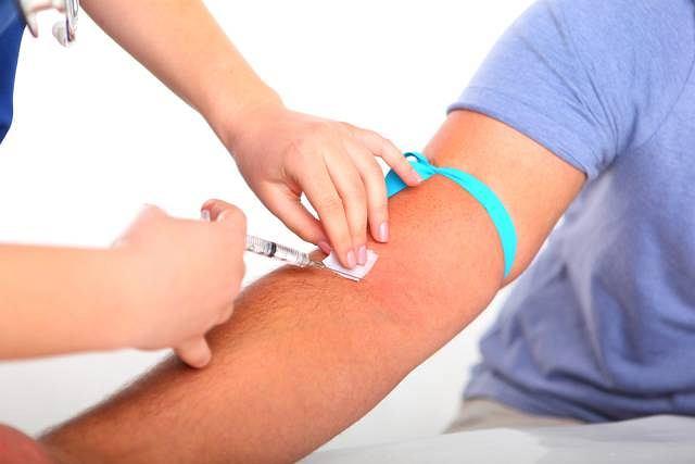 Stężenie bilirubiny, określane na podstawie badania krwi, pozwala m.in. rozpoznać zmiany chorobowe w wątrobie