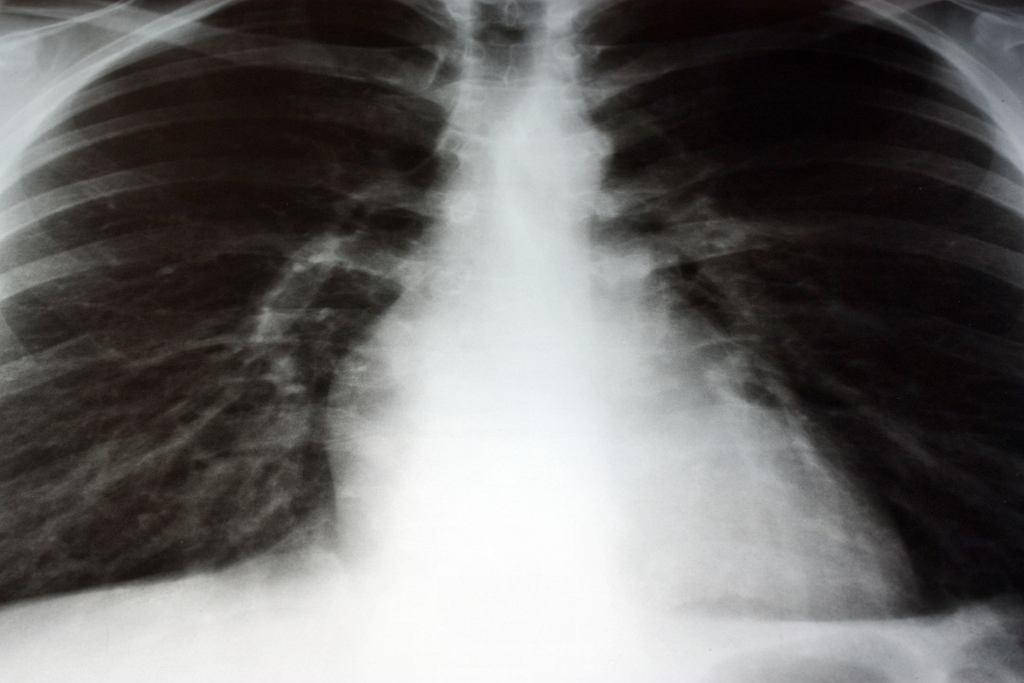 RTG klatki piersiowej - kto powinien wykonać badanie i na czym ono polega?