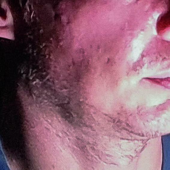 Samsung był bezlitosny i wychwycił nieperfekcje golenia i cery.
