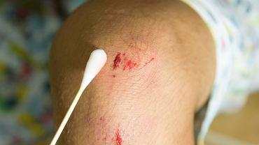 Na rany najlepiej używać sprawdzonych preparatów leczniczych