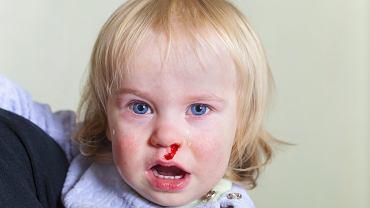 Krwawienie z nosa u dziecka. Czym może być spowodowane i jak sobie z nim poradzić? Zdjęcie ilustracyjne