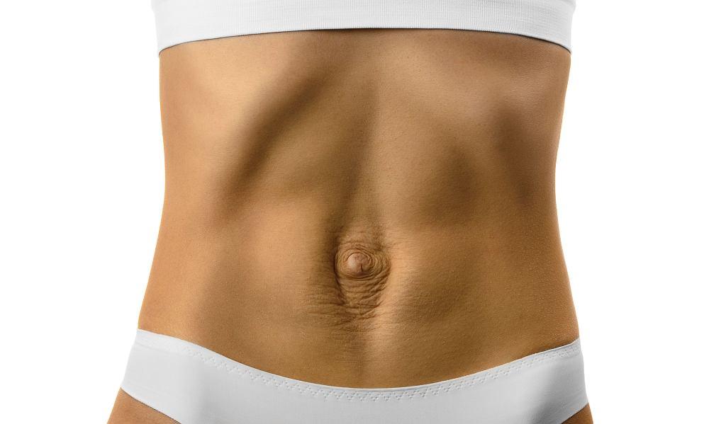 Rozejście mięśnia prostego brzucha czasem widać gołym okiem