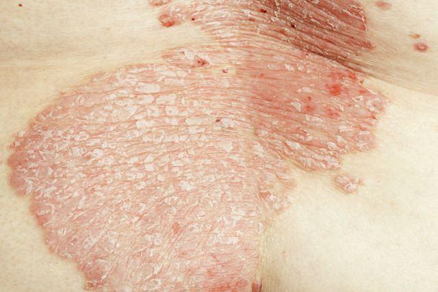 Zespół SAPHO pojawia się przede wszystkim u osób chorujących na jedną z odmian łuszczycy