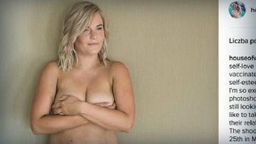 Po porodzie zdecydowała się na odważną sesję zdjęciową
