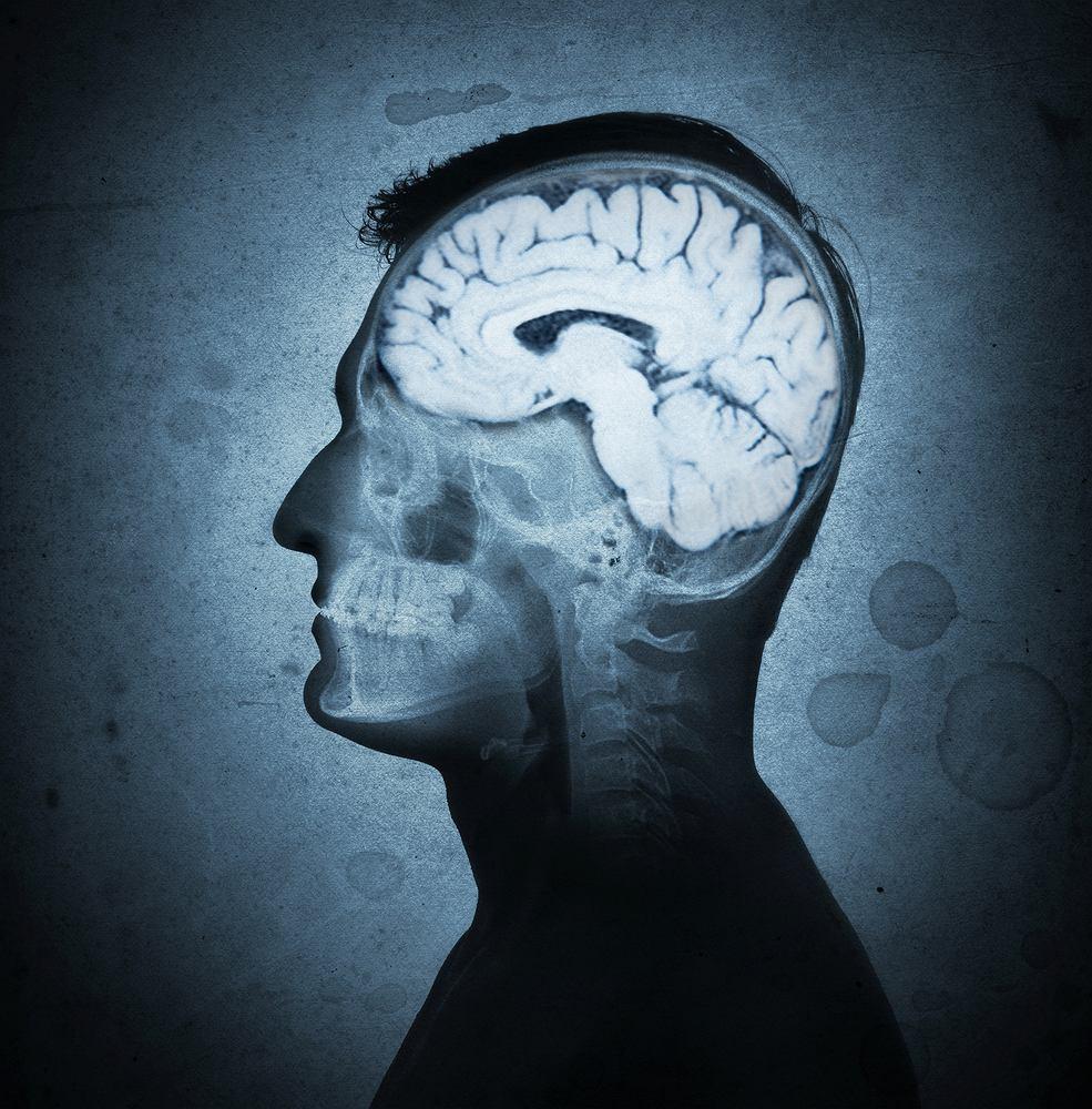 Angiografia mózgowa - jak wygląda badanie?