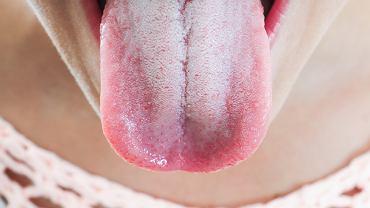 Biały osad na języku występuje często u osób palących papierosy