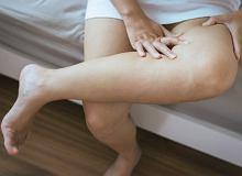 Ból łydek Jakie Są Jego Przyczyny Jak Sobie Pomóc