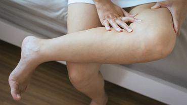 Nie lekceważ obrzęków, jeśli twój stan się nie poprawia lub dochodzą kolejne, niepokojące objawy. Zakrzepica to poważne zagrożenie dla zdrowia