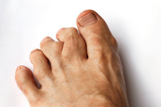 Choroba Olliera - objawy, diagnoza, leczenie