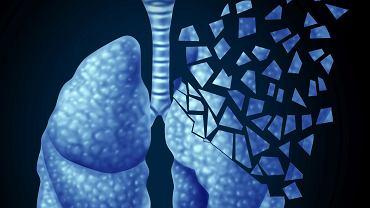 Około 80 proc. wszystkich przypadków raka płuc to rak niedrobnokomórkowy