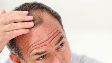 Łysienie - czy ma związek z poziomem testosteronu?