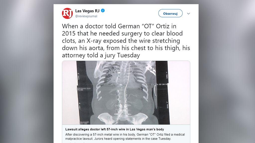Mężczyzna w USA po latach odkrył, że lekarz zostawił w jego ciele kabel. Teraz podał go do sądu