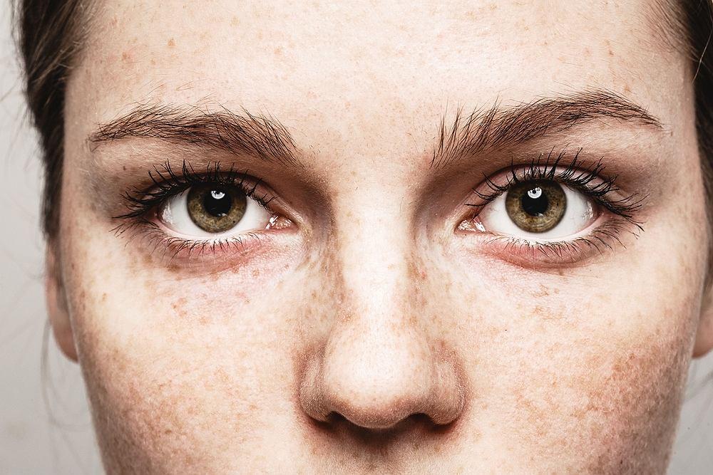 Opadająca powieka to problem wielu kobiet, który powoduje, iż wyraz twarzy staje się smutny, posępny, a nawet groźny