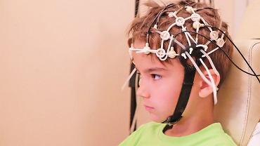 Elektroencefalografia (EEG) jest pomocna przy diagnozowaniu padaczki, ale nie tylko