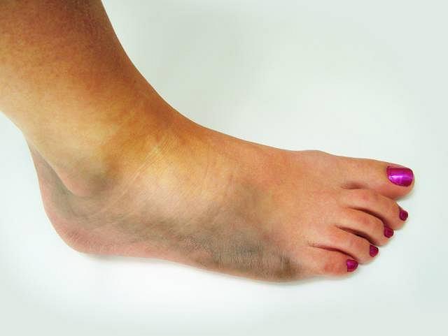 Najbardziej charakterystycznym objawem stłuczenia są krwawe wylewy w obrębie uszkodzonej kończyny