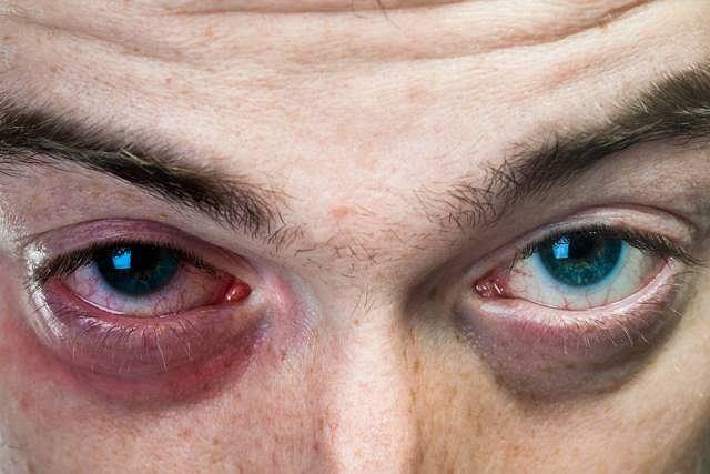 Zaczerwienienie, ból oraz łzawienie oczu to najczęstsze objawy zapalenia woreczka łzowego i zwężenia dróg łzowych