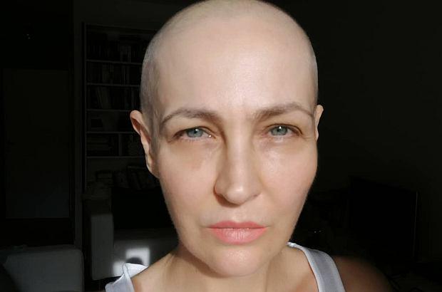 """Anna Puślecka niedawno wyznała, że walczy z rakiem piersi. Teraz w """"DD TVN"""" opowiedziała o swojej chorobie. Okazuje się, że choroba jest rzadkim przypadkiem."""