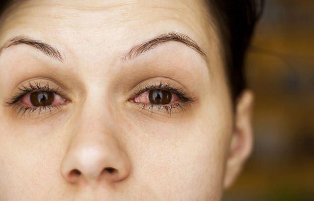 Zaczerwienienie oczu to jeden z pierwszych objawów skórzaka