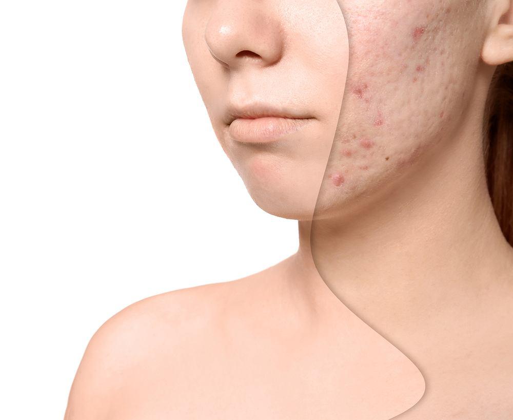 Blizny powstają na skutek uszkodzenia skóry właściwej i zasklepienia jej włóknistą tkanką łączną.