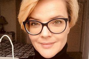 Monika Zamachowska pokazała zdjęcie zrobione po zabiegu upiększającym
