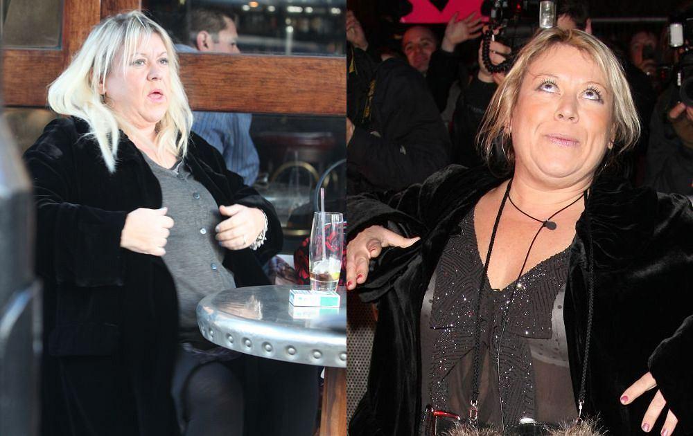 Schudła 70 kilo tak szybko, że teraz trzeba wyciąć skórę, która nie zdążyła się skurczyć. Mało tego, Tina Malone, brytyjska celebrytka, zamierza wydać majątek na kolejne operacje. Metamorfoza, jaką przeszła, jest zdumiewająca. Sami zobaczcie!