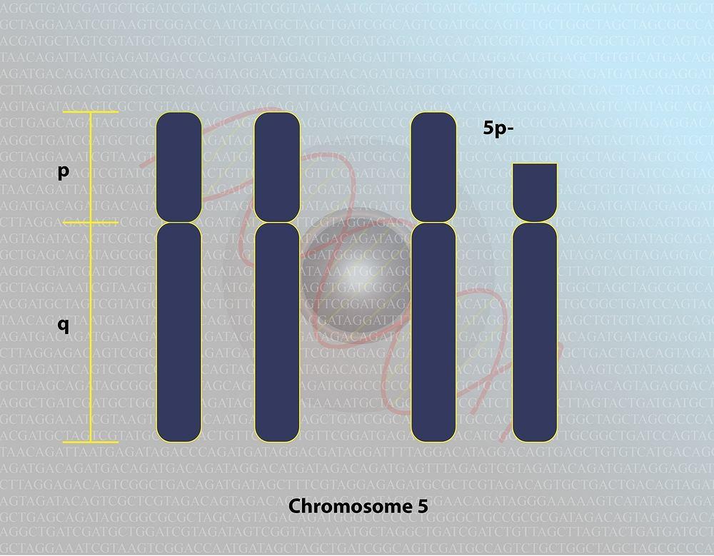 Cri du Chat (zespół kociego krzyku, zespół kociego krzyku, zespół miauczenia kota) to choroba genetyczna wywołana delecją, czyli samoistnym usunięciem części krótkiego ramienia chromosomu 5.