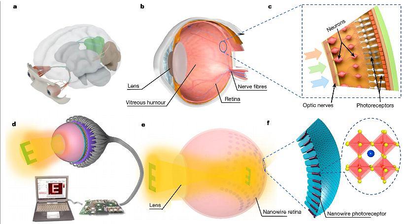 Budowa sztucznego oka