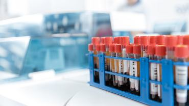 Hematologia to dziedzina medycyny zajmująca się schorzeniami układu krwiotwórczego i samej krwi.