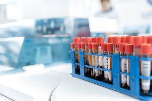 Czym się zajmuje hematologia?