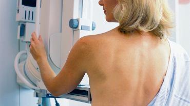 Upowszechnienie badań przesiewowych pozwala na coraz skuteczniejsze wykrywanie raka sutka na jego wczesnym etapie