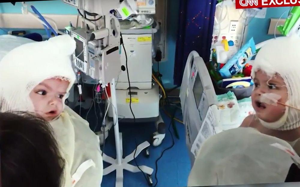 Bliźnięta po operacji rozdzielenia