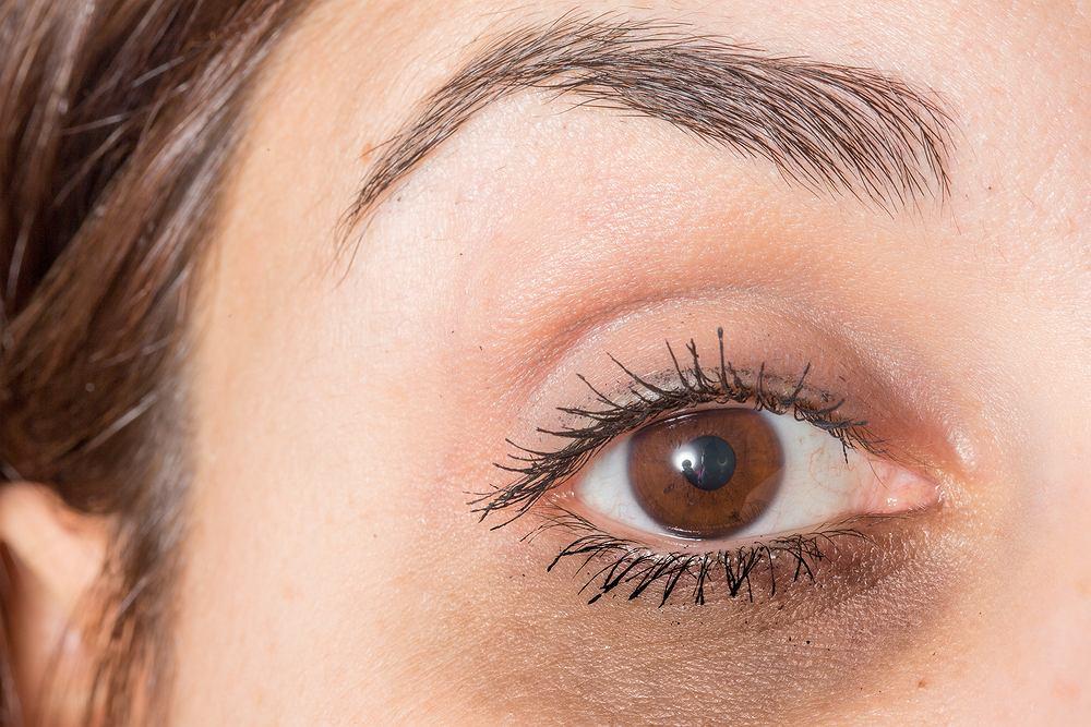 Sińce pod oczami pojawiają się z różnych powodów - zarówno w wyniku niewyspania i zmęczenia, jak i choroby.