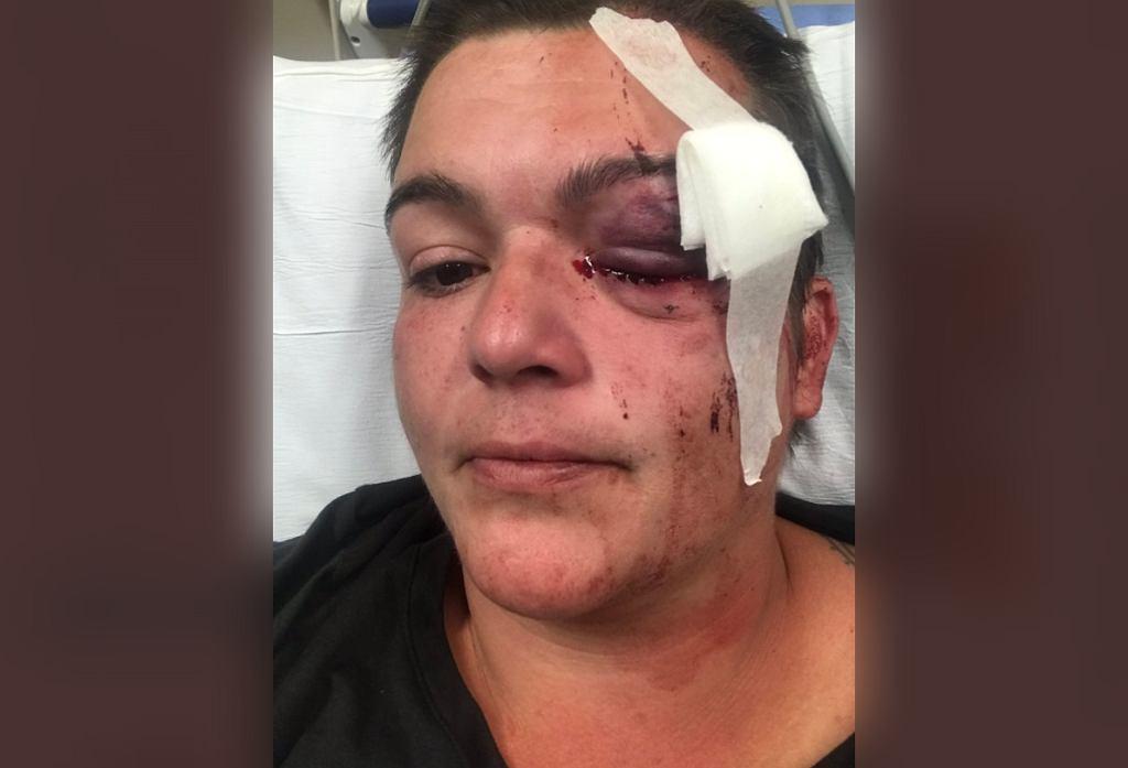 Dziennikarka postrzelona podczas protestów z USA
