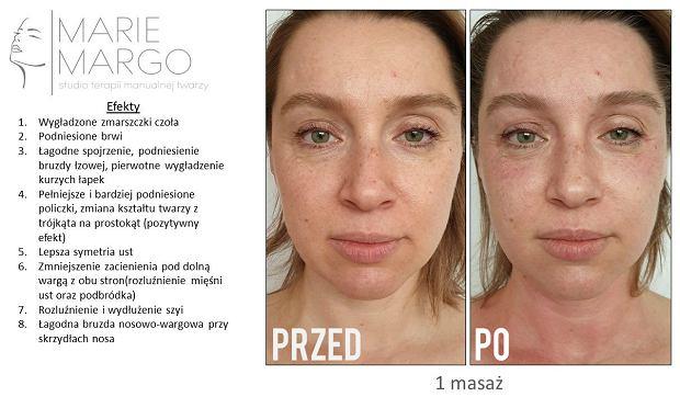 Rehabilitacja twarzy