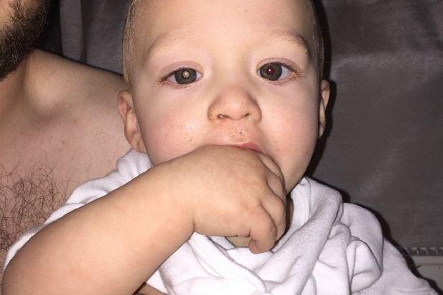Wystarczyło jedno zdjęcie, żeby ojciec Jaxsona zauważyl, że coś jest nie tak z jego oczami