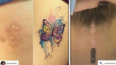 Przykrycie blizny tatuażem?