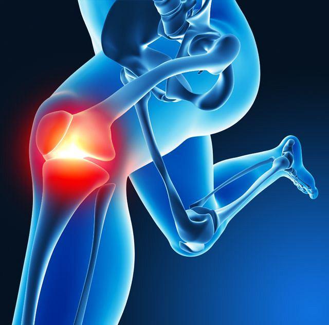 Zwyrodnienie najczęściej dotyka staw biodrowy, kolanowy, rękę lub kręgosłup