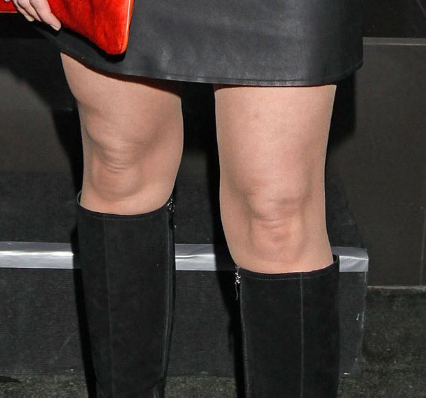 Katarzyna Galica, kolana