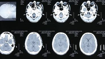 Niedoczynność przysadki mózgowej może wywołać m.in. upośledzenie rozwoju biologicznego oraz zmiany nowotworowe