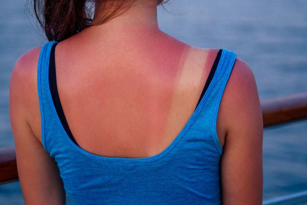 Oparzenia słoneczne to coś, czemu możemy zapobiec stosując filtry przeciwsłoneczne