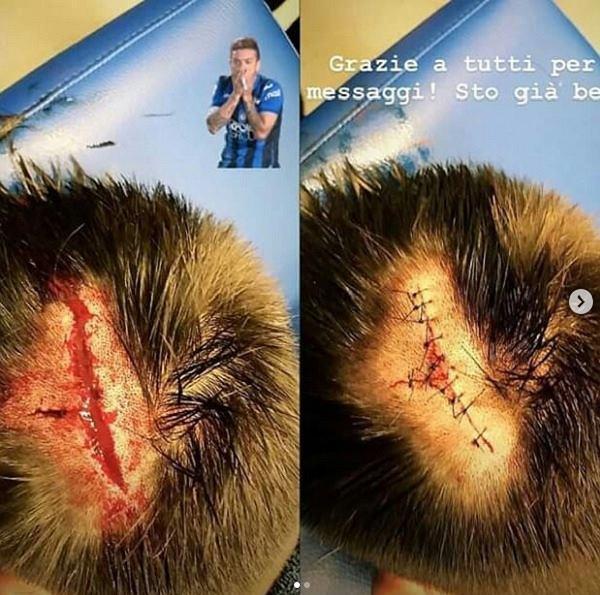 Obrońca Atalanty Bergamo opublikował zdjęcie rany głowy