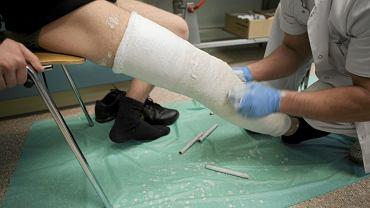 Na SOR trafiają też pacjenci ze złamaniami (fot. Tomasz Fritz / Agencja Gazeta)