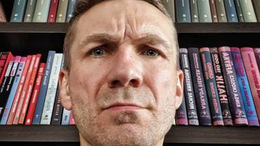 """Przemek Kossakowski przeszedł metamorfozę. """"Botoks, kwas hialuronowy, powiększenie ust"""". Pokazał twarz po zabiegu"""