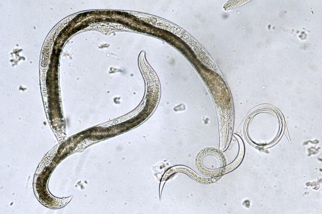 Wywołujący chorobę pasożyt przenoszony jest najczęściej przez koty lub psy