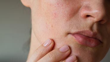 Jak zadbać o skórę przed sylwestrem