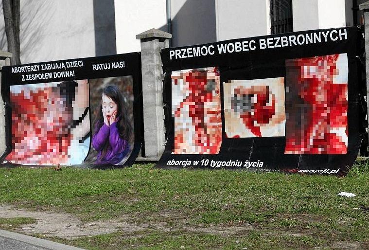 Wywieszanie billboardów z zakrwawionymi ludzkimi płodami przekracza granice wolności słowa - uznał Sąd Okręgowy we Wrocławiu/zdjęcie ilustracyjne